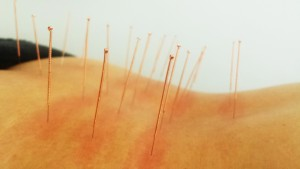 Acupunctuur vuur onderrugklachten
